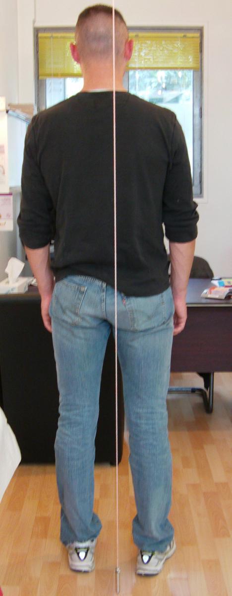 Dépistage des asymétries toniques posturales au fil à plomb