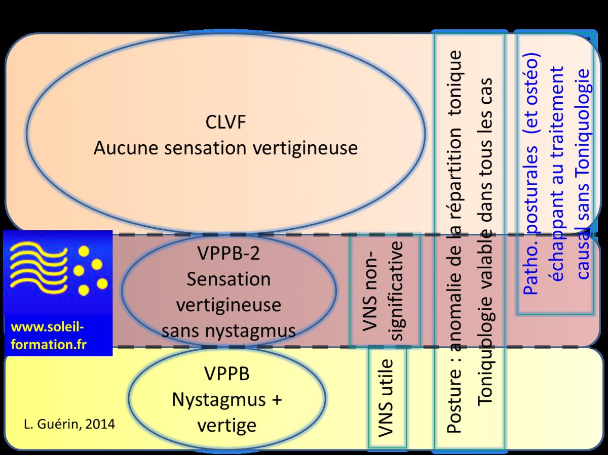 VPPB, VPPB-2, CLVF : de nombreux patients non-diagnostiqués