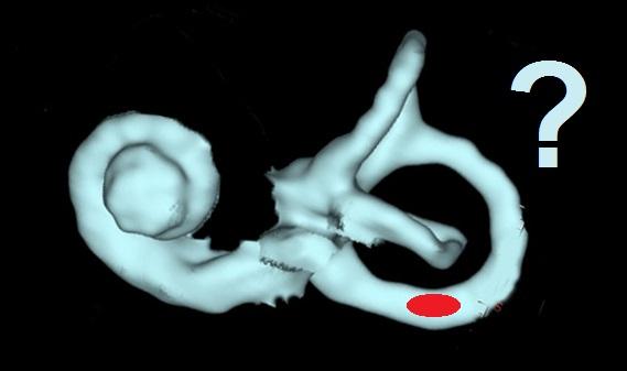 Image schématique du concept des cristaux bloqués dans un conduit semi-circulaire
